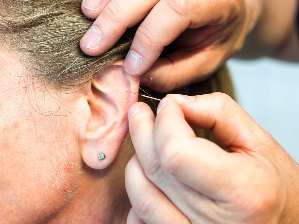 hausarzt-chirurg-schwabstedt-wacker-akupunktur